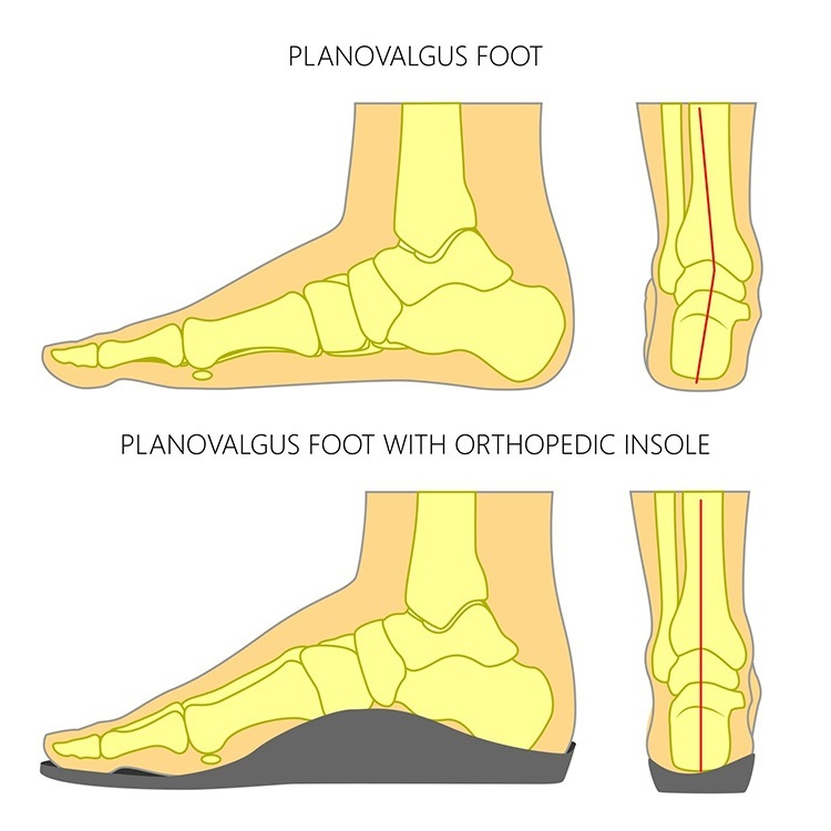 pronation of foot