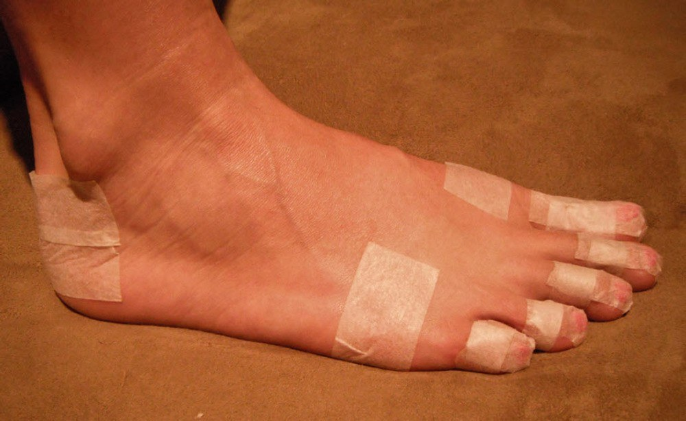 blisters on feet from running