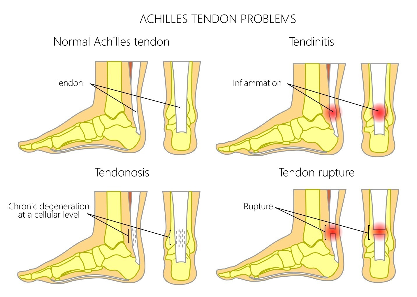 tendonitis on top of the foot