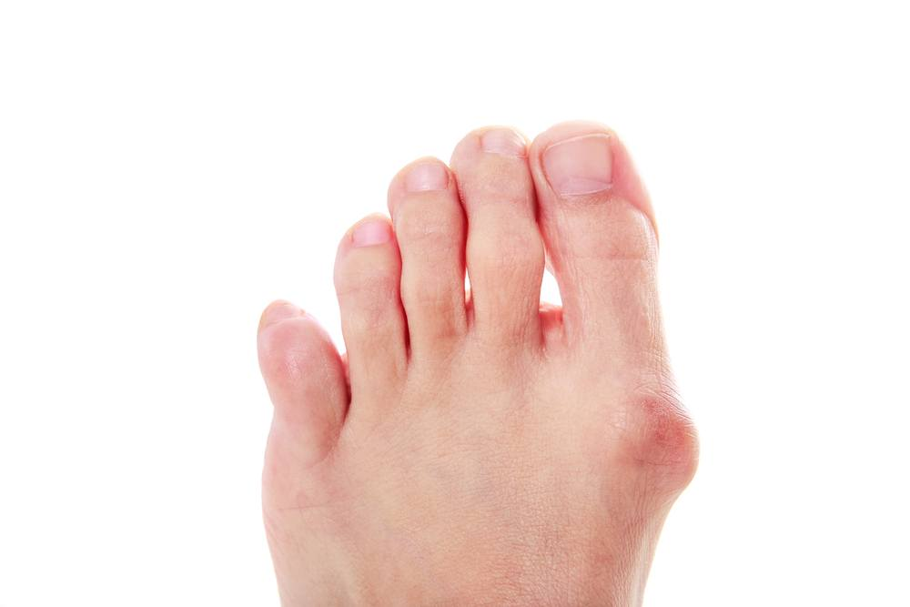 Bunions And Running Shoes